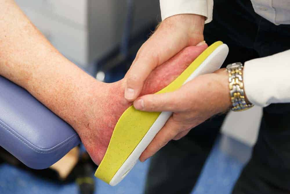 Custom Footwear insoles being fitted on a person's foot