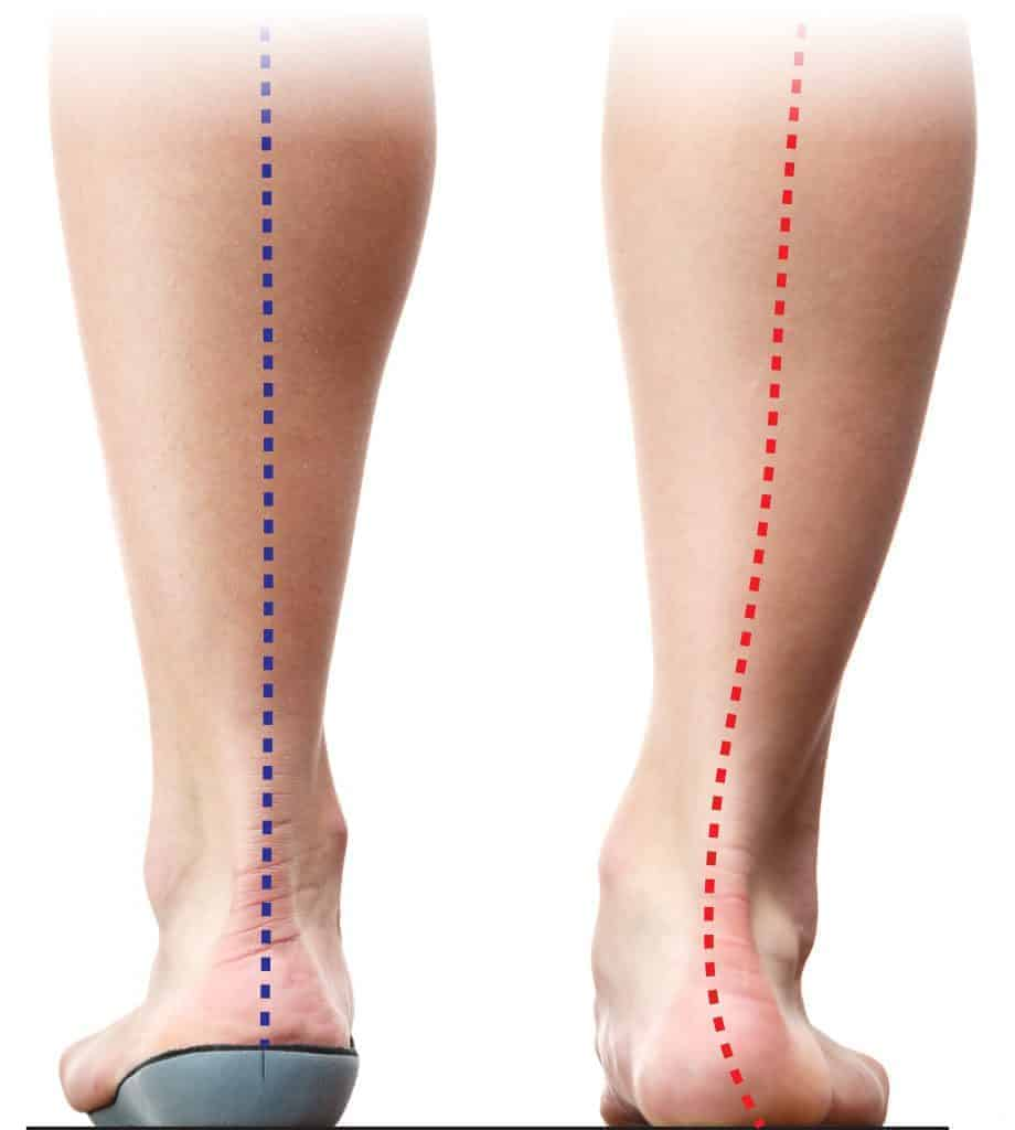 Running Orthotic Before and After