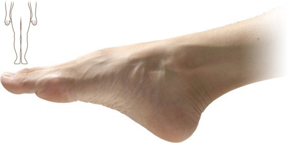 a feet with a lower part of body graphics