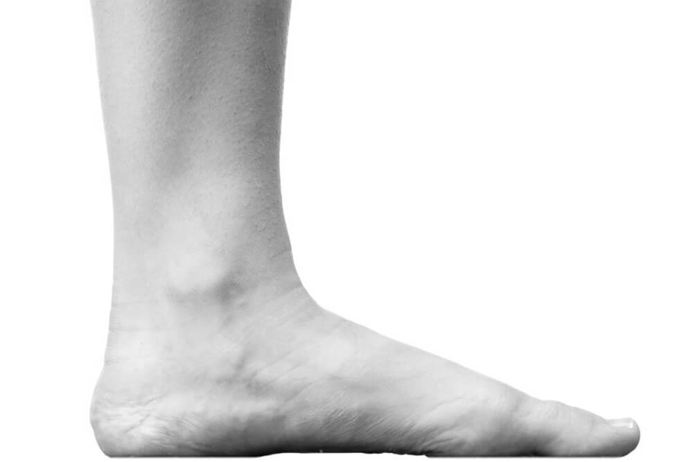 Picture of Flat Feet