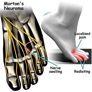 Morton's neuroma illustration