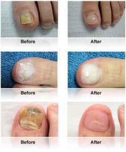 keryflex nail restoration examples before and after