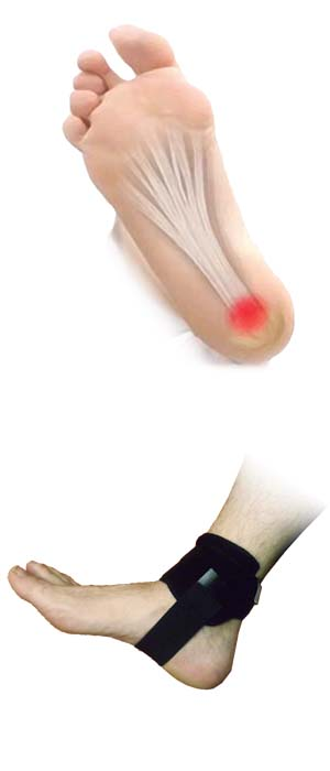 plantar fasciitis fascial splint ankle illustration