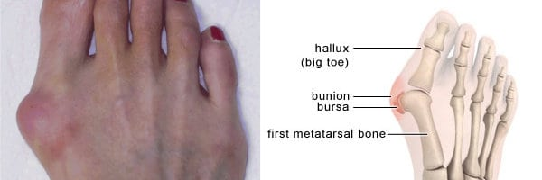 What are Bunions and the Possible Treatment Options