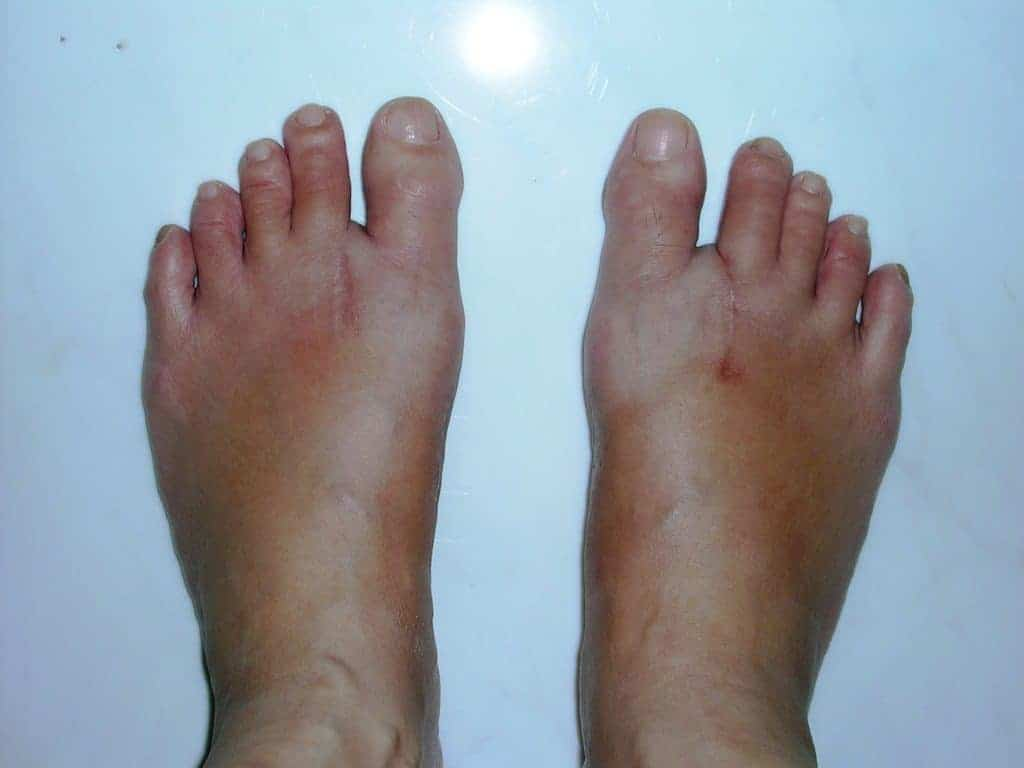 Bunions - Feet after surgery