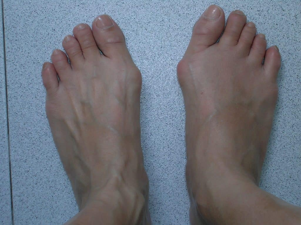 Bunions - Feet before surgery
