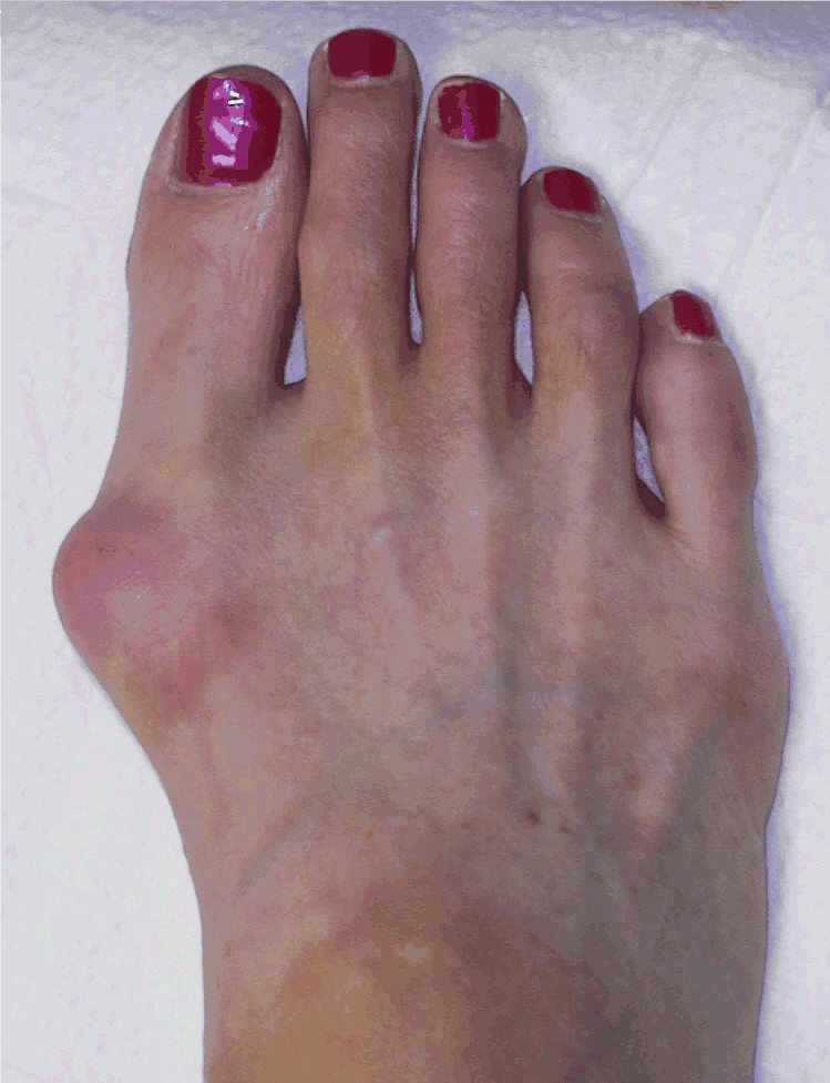 Woman's feet swollen with bunions