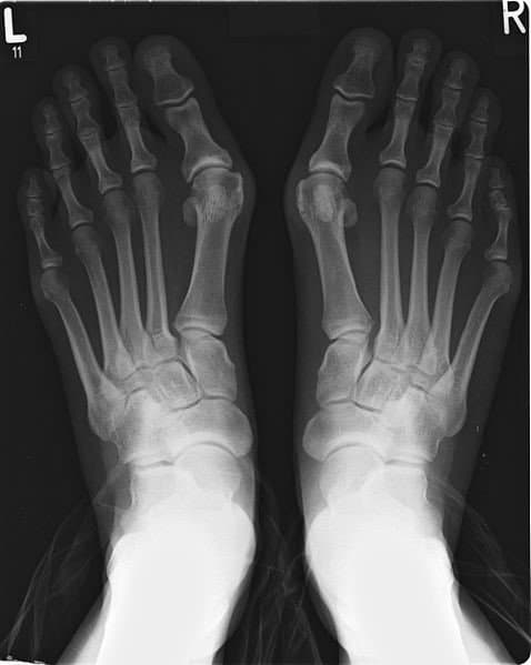 bunions-x-ray of feet with bunions-001