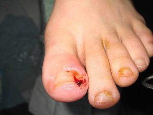 ingrown toenail cut into flesh and cause bleeding