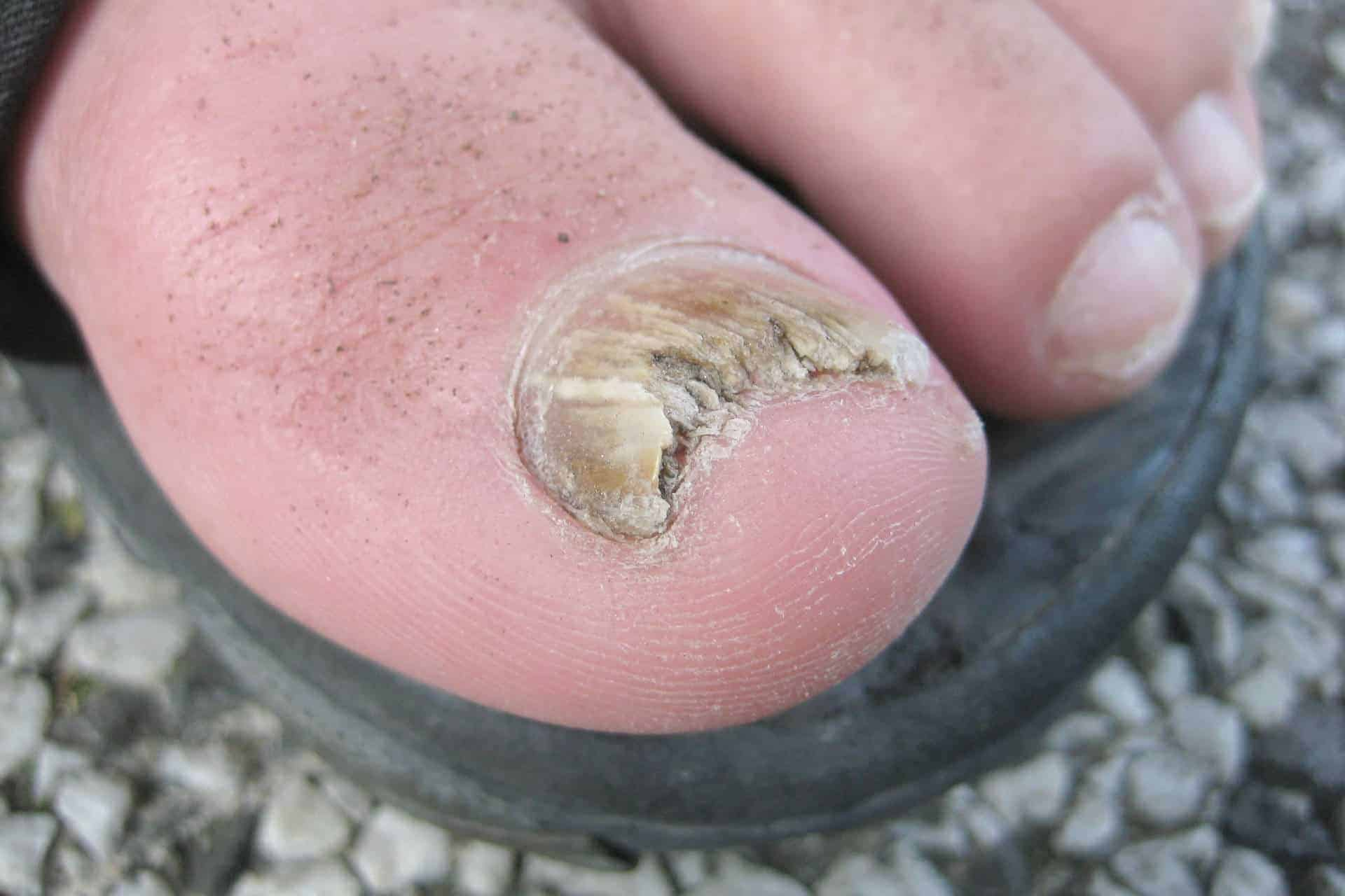 featured image - Toenail Problem: An Important Guide to Understanding Your Condition