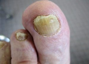 toenail infected by fungal