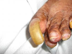 thickedned toenail that has overgrown