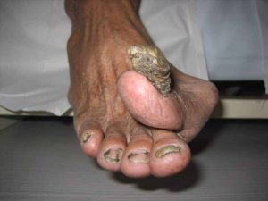 thickened toenail that has overgrowned and infected