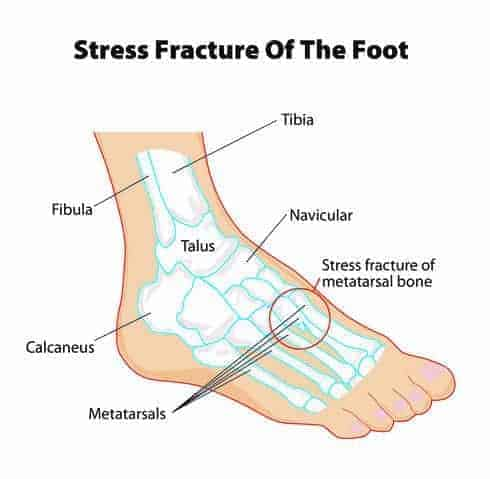Stress fracture illustrated on the foot