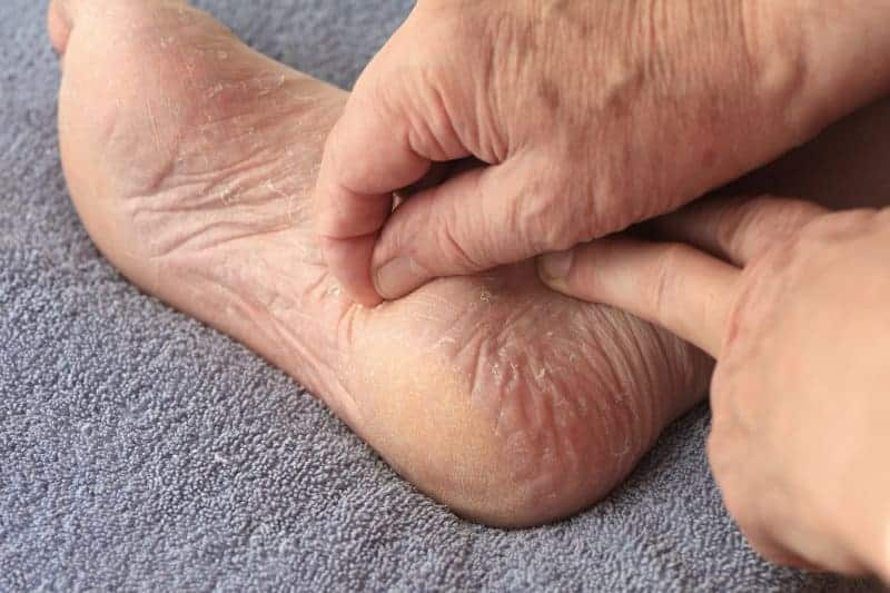Man peels dry skin on his foot, how to cure foot rot