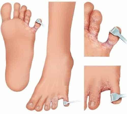 foot rot treatment