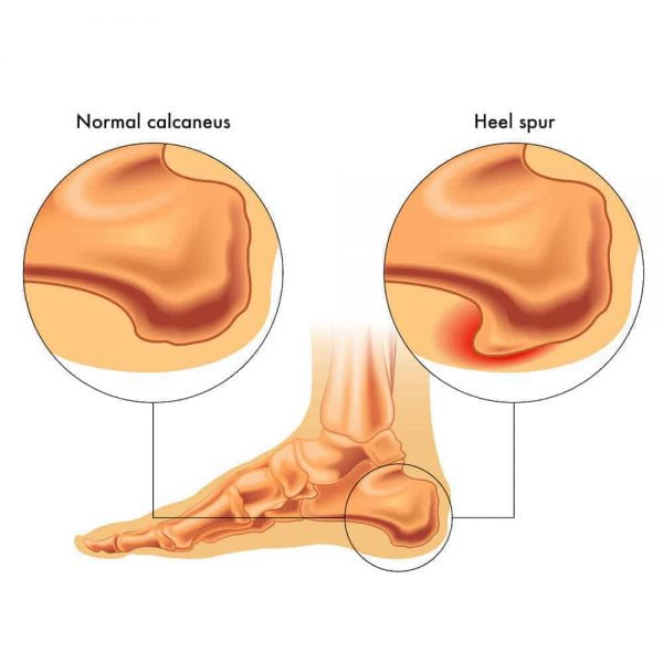 My FootDr Singapore: Conditions treated - Illustration of Heel Spurs