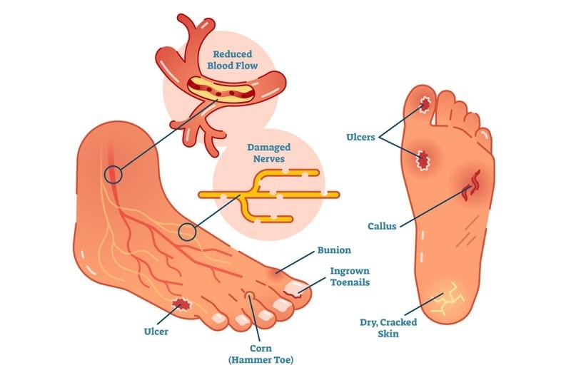 conditions of diabetic foot ulcer