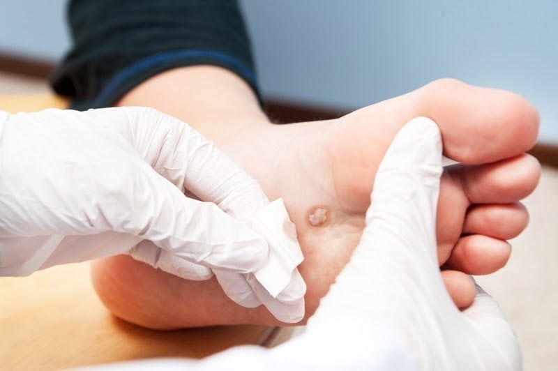 get treatment for diabetic foot ulcer today