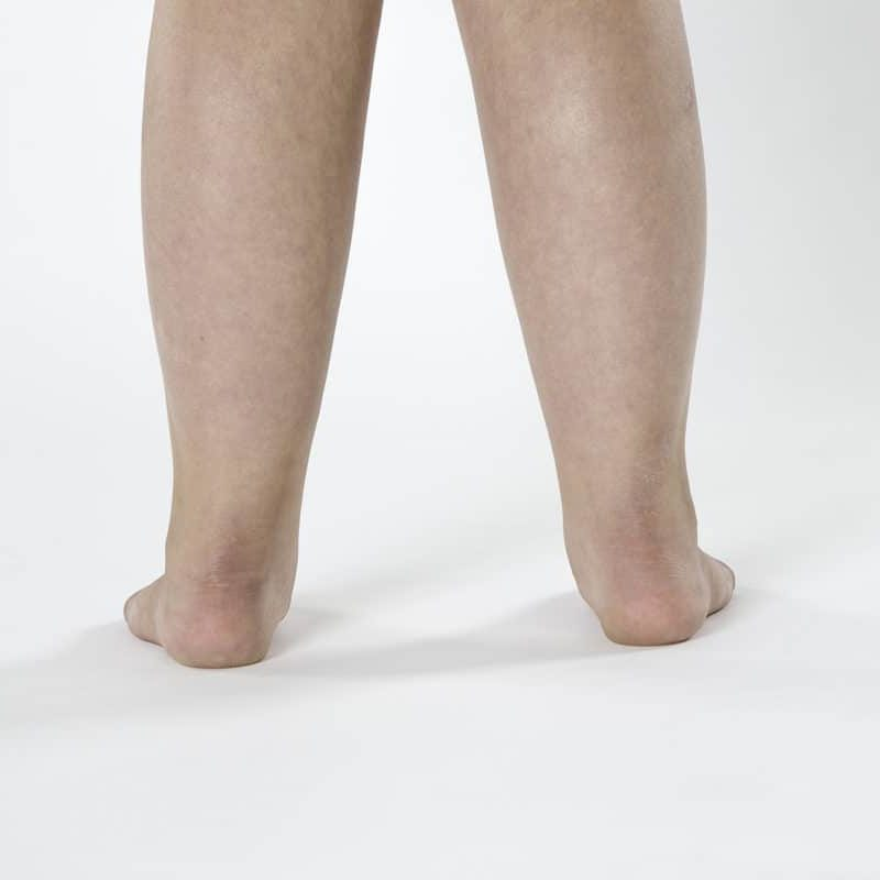 Back view of a person's leg