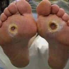 Diabetes Ulcer on the foot