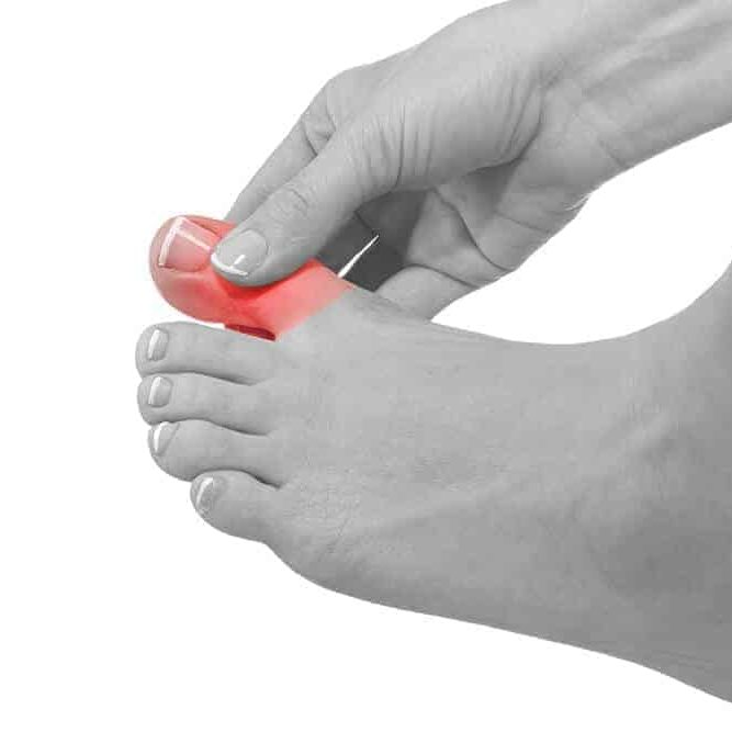 Ingrown Toe Nails marked in red flash