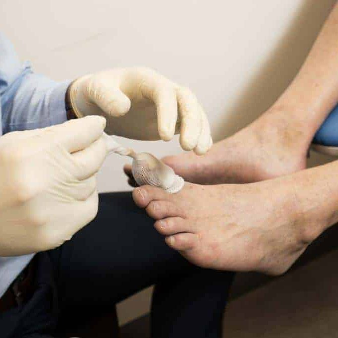 Ingrown Toe Nails being treated by a Podiatrist