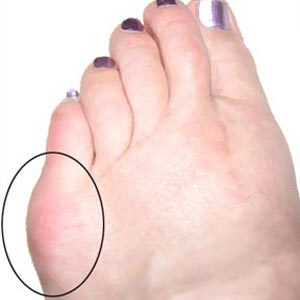 Tailor's Bunions circled in black