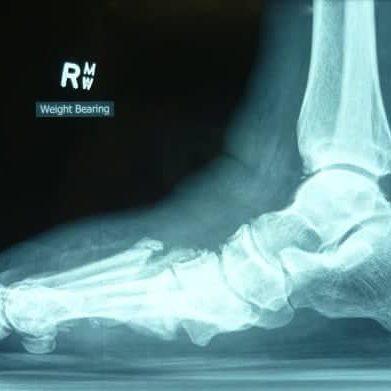 Diabetic Foot Ulcer Xray