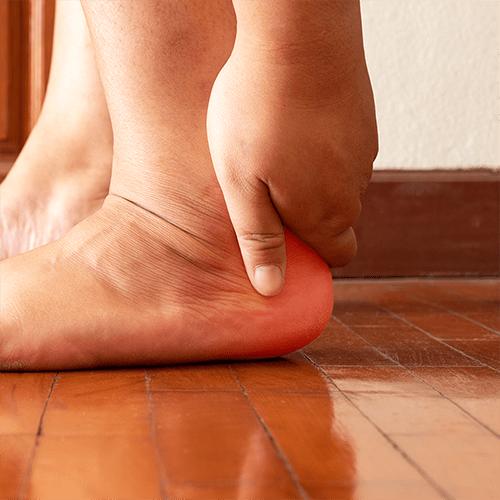 plantar-fasciitis-heel-pain-grasping-heel